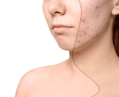 Acne Scar Removal Cost