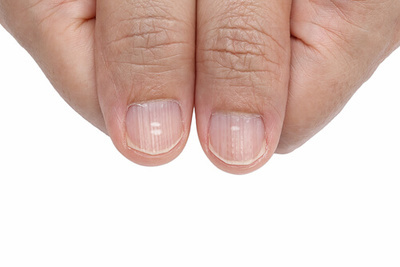 How to Get Rid of Nail Ridges