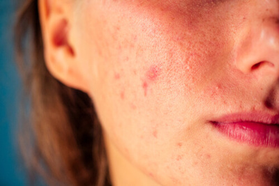 Acne Redness - How To Reduce It Naturally